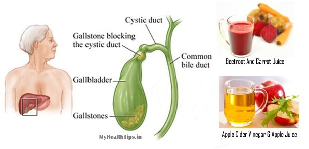 9 Best Natural Remedies for Gallstones (LINK) – …Ofthestory